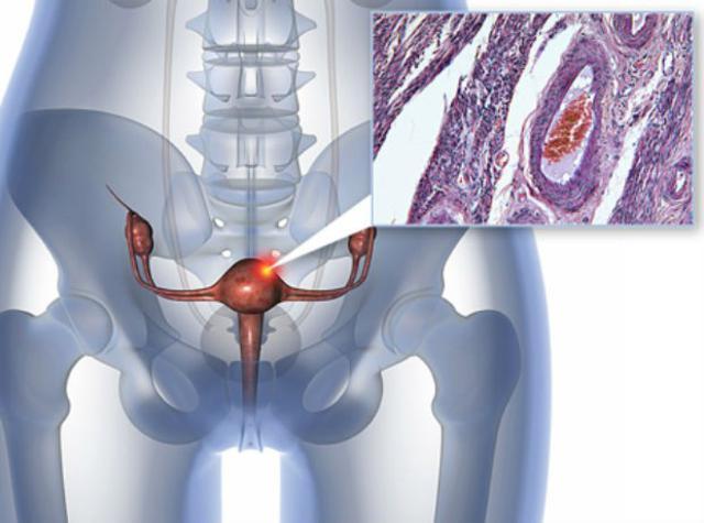 Аденокарцинома шейки матки - Лечение рака в Израиле
