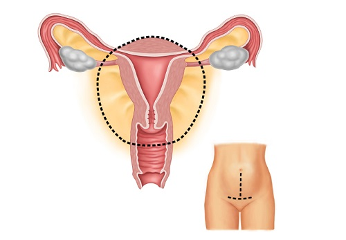 Операция рак матки лечение