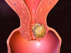 Что называют плоскоклеточной карциномой шейки матки