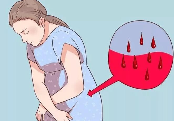 Маточное кровотечение причины признаки первая помощь