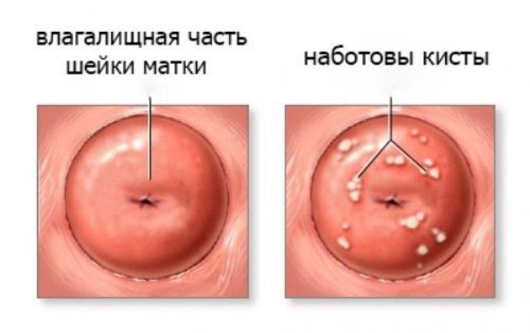 Киста шейки матки - лечение, симптомы, удаление кисты