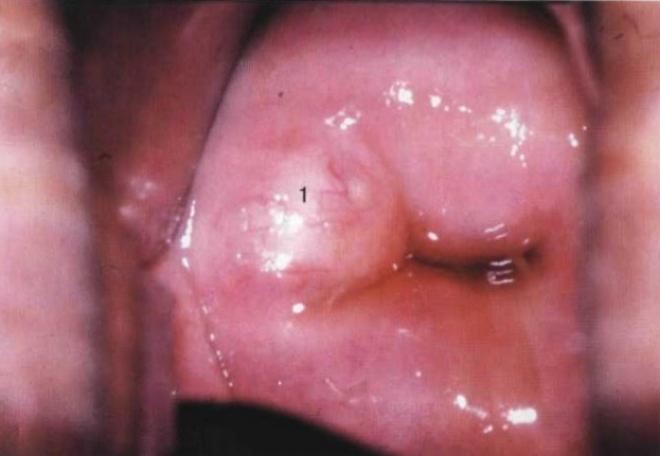 Гинекология эрозия шейки матки киста