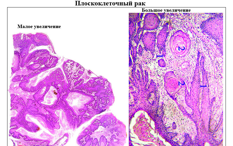 Рак шейки матки 1 стадии: прогноз и лечение