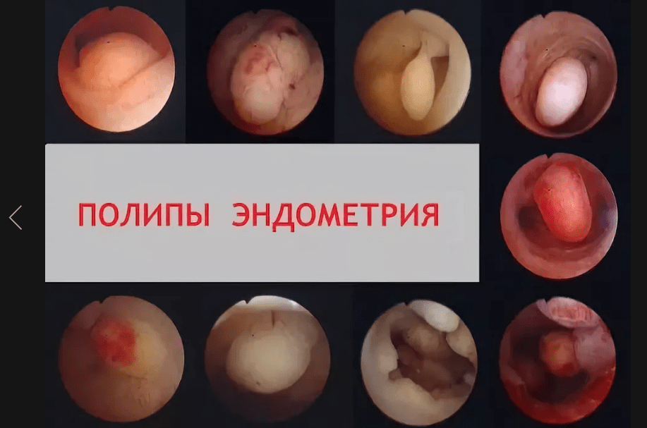 Что такое полипы в гинекологии