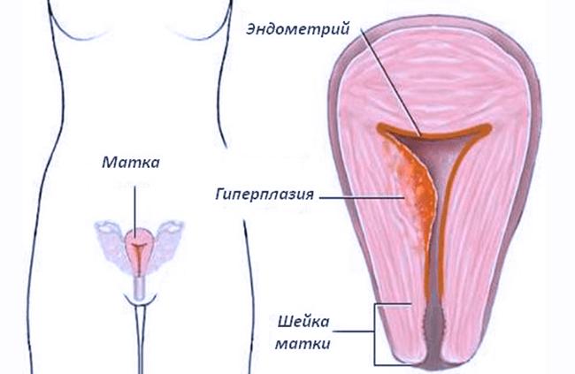 Гиперплазия эндометрия в постменопаузе симптомы и лечение