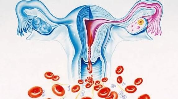 Что делать при маточном кровотечении: признаки и первая помощь