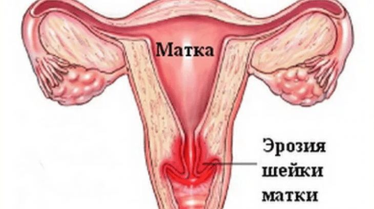 Почему кровит шейка матки при осмотре и что делать когда кровоточит эрозия. Кровит шейка матки при беременности