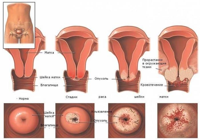 Цитологическое исследование мазков шейки матки