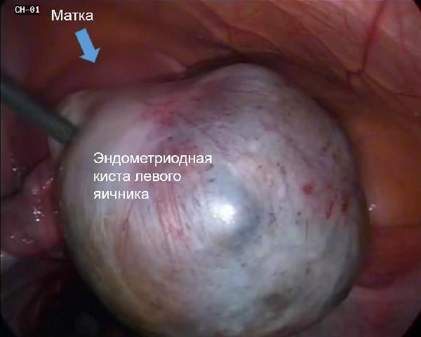 Почему яичники сильно болят и что делать