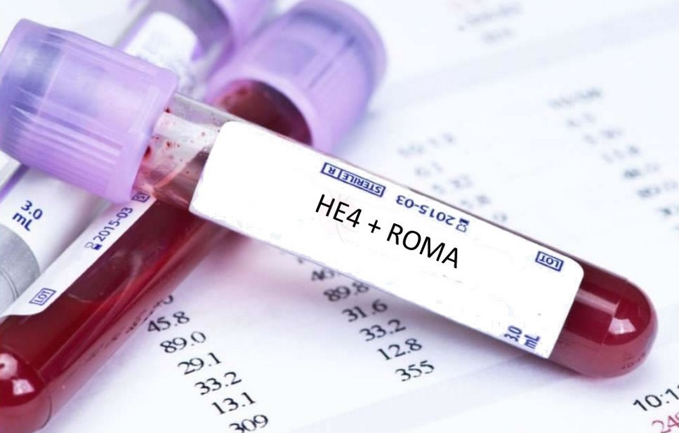 Индекс рома (roma) в гинекологии