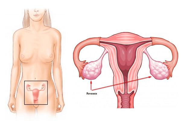 Увеличены яичники причины лечение