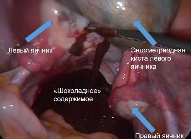 Киста яичника при беременности