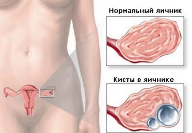 Клиновидная резекция яичников