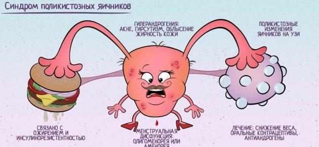 ПИТАНИЕ ПРИ ПОЛИКИСТОЗЕ ЯИЧНИКОВ: КАК ПОХУДЕТЬ ПРИ СПКЯ. Нужна ли диета при поликистозе яичников?