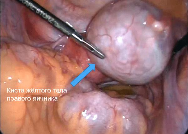 Узи показало желтое тело в правом яичнике 38