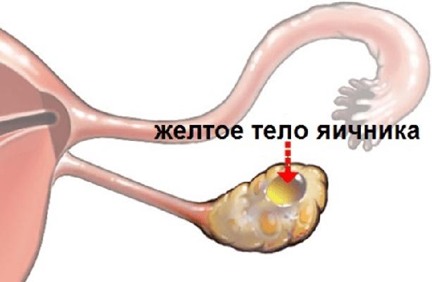 Недостаточность желтого тела яичника (прогестероновая недостаточность)