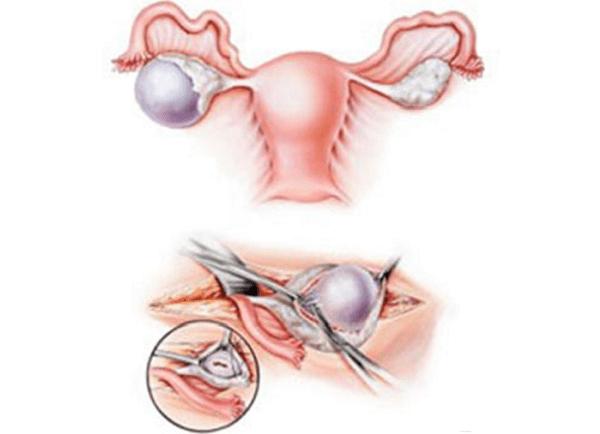 Дисфункция яичников: симптомы и методы лечения