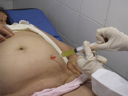 Рак яичников 3, 4 стадия: сколько живут с асцитом