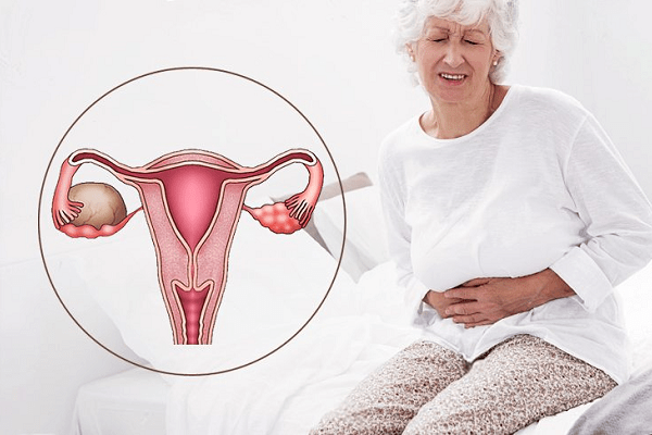 Дисфункция яичников - причины, признаки, симптомы и лечение