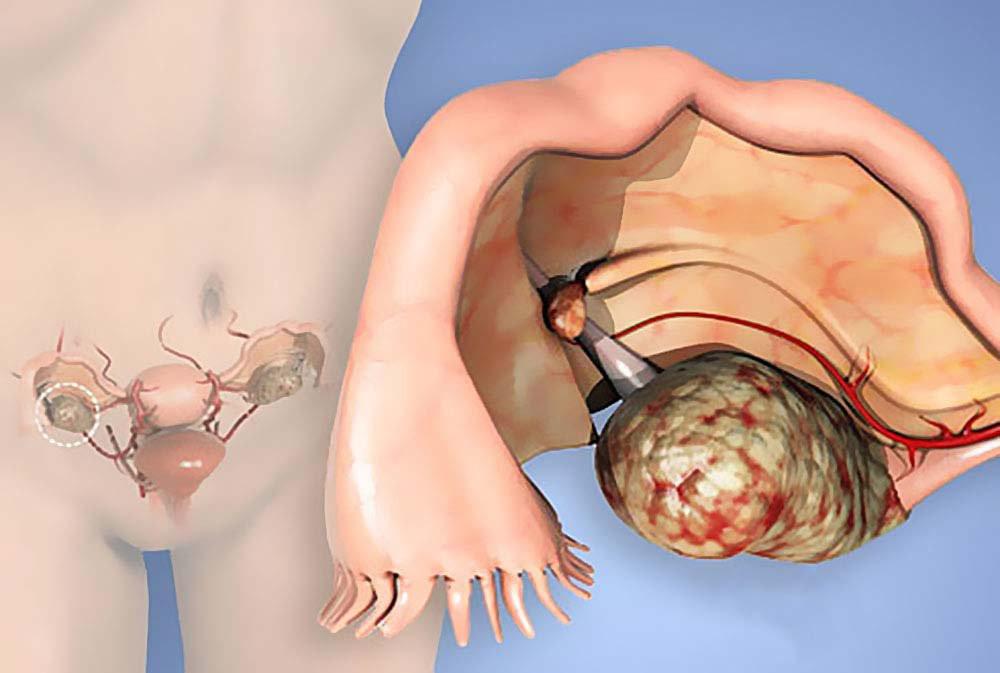 Может ли киста переродиться в рак