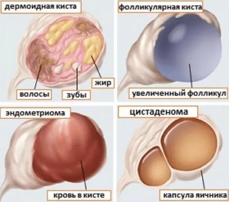 Маточное кровотечение при кисте яичника лечение thumbnail