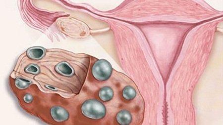 Лечение поликистоза яичников народными средствами