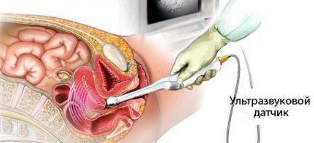 УЗИ яичников у женщин
