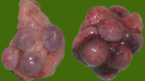 Поликистоз яичников: симптомы и лечение народными средствами