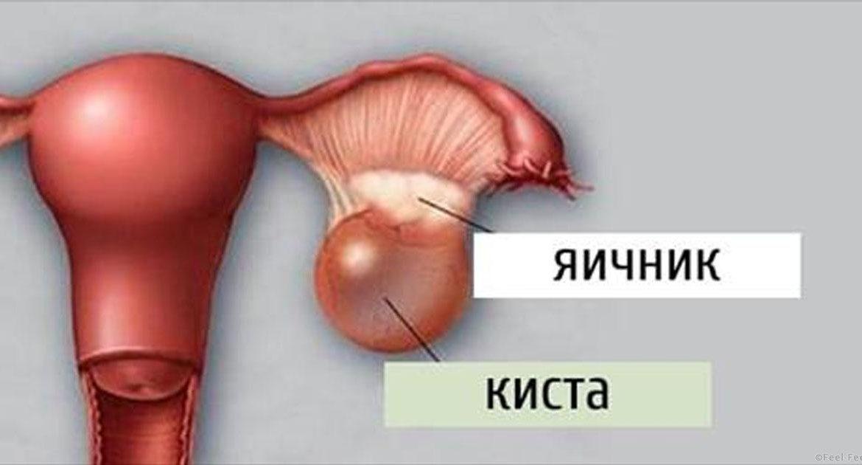 Функциональная киста правого и левого яичника