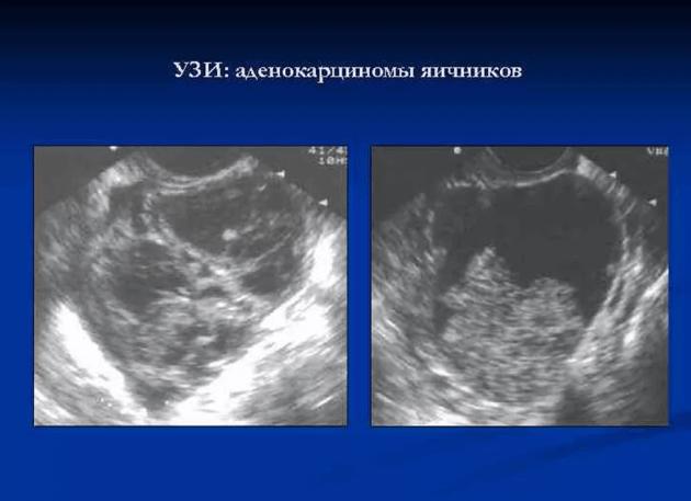 Рак яичников: симптомы у женщин