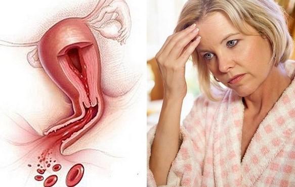Таблетки вызывающие месячные при климаксе 5