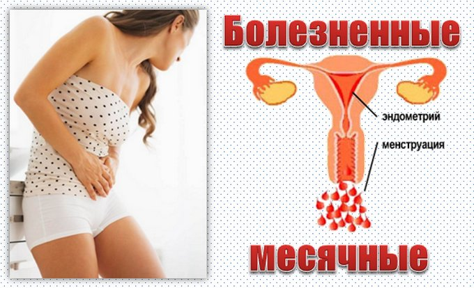 Сильные боли при месячных: причины менструальных спазмов и как избавиться от них