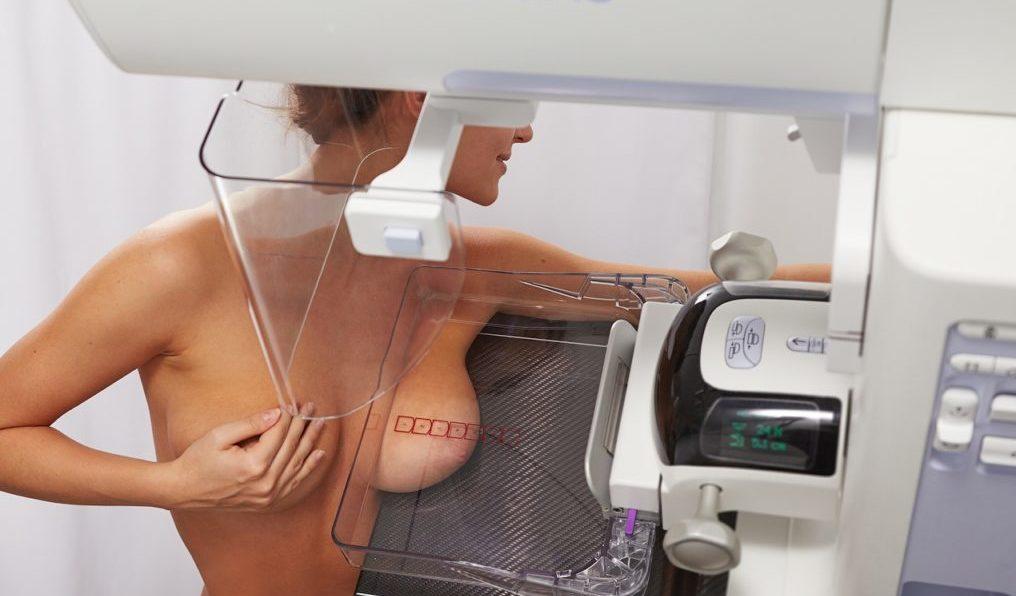 Маммография молочных желез на какой день цикла лучше делать