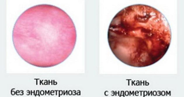 Задержка месячных при эндометриозе