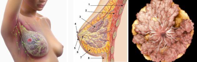 Почему болит грудь после медикаментозного прерывания беременности
