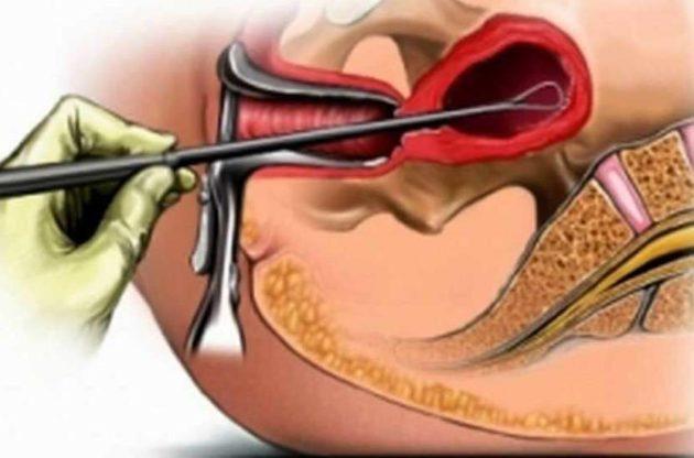 Сколько по времени делается хирургический аборт 22