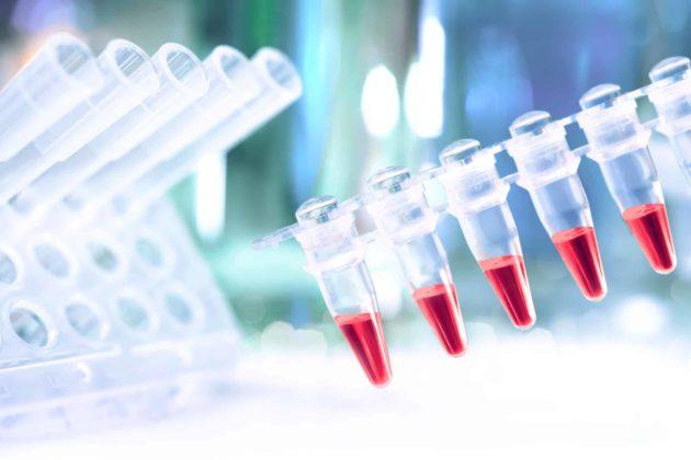 Анализ крови на хламидии: расшифровка, норма, таблица