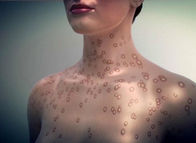Последствия после сифилиса у женщин и мужчин