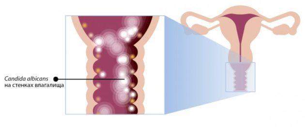 Признаки и лечение кандидоза (молочницы) при беременности в 3 триместре