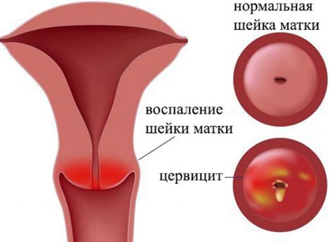 Лечение цервицита у женщин свечами тержинан. Цервицит лечение: свечи от цервицита. Суппозитории как лекарственная форма