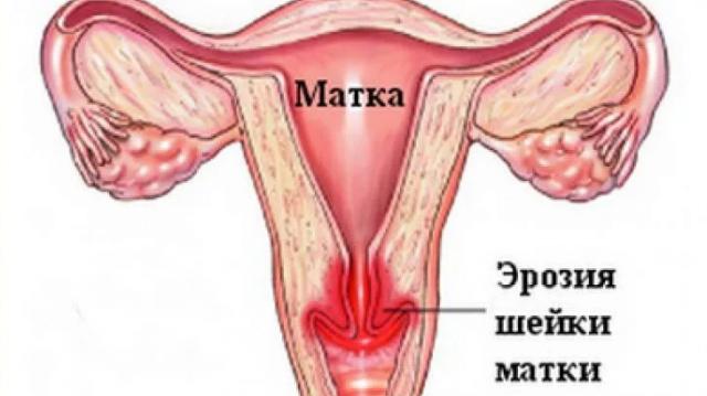 Почему кровоточит шейка матки Причины и лечение