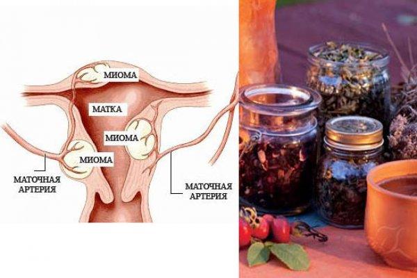 Лечение миомы матки лекарственными травами