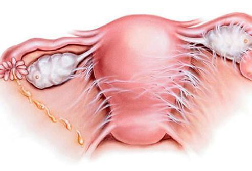 Спайки после операции по удалению миомы матки