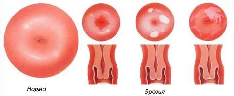 Эрозия шейки матки стадии развития