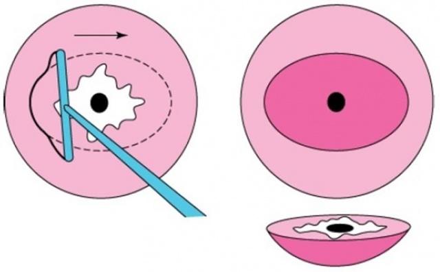 ДИСПЛАЗИЯ шейки матки (LSIL, HSIL, CIN 1, CIN 2, CIN 3) - что это такое?