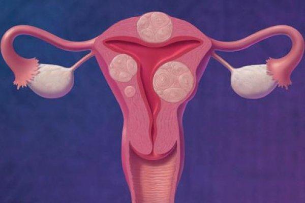 Можно делать физиотерапию при миоме матки