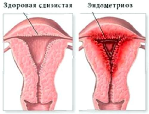 Эндометриоз тазовой брюшины что это такое