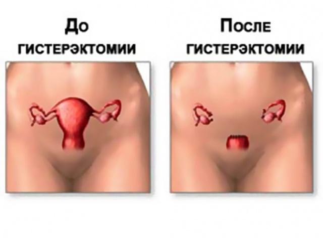 Удаление матки как проводится операция