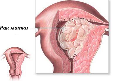 Рак матки: первые признаки и симптомы, лечение рака матки