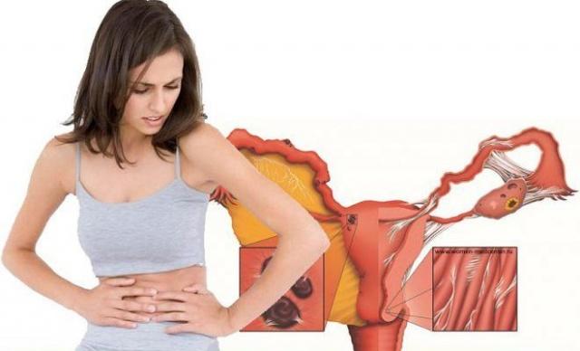 Какие выделения при эндометриозе || Мажущие выделения при эндометриозе